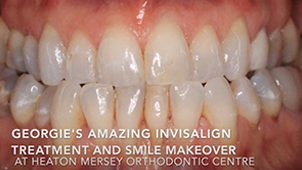 clear braces manchester | invisible braces stockport